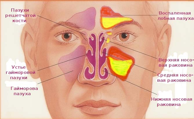Гайморит и заложенность носа