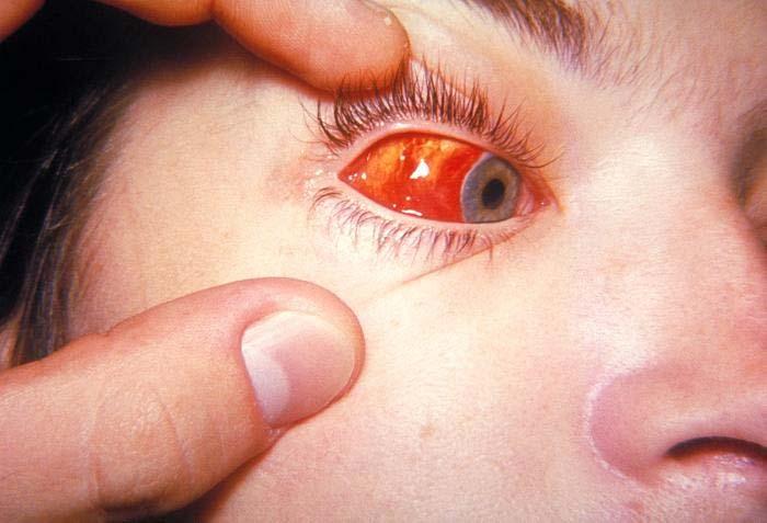 Инфекционный мононуклеоз синонимы