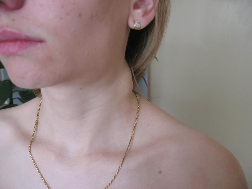 Операции по уменьшению и подтяжки груди