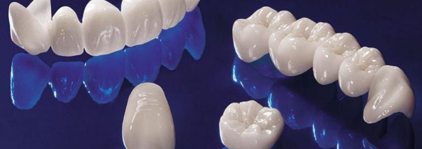 Особенности безметалловой коронки на зуб