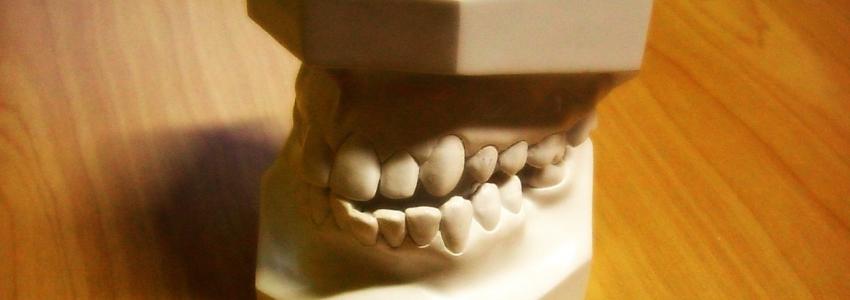 Качественные и долговечные зубные коронки