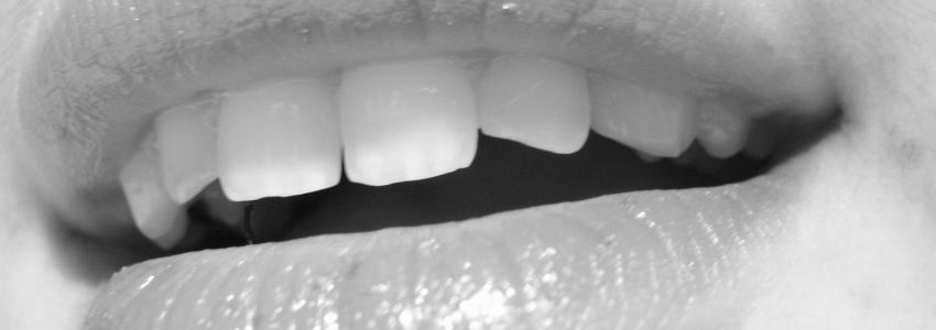Какие зубные протезы предпочтительнее выбрать