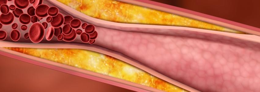 Уровень холестерина в крови: норма, пониженный и повышенный