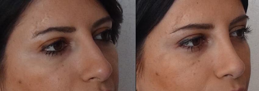 Ринопластика: изменение формы носа и лечение патологий, мешающих дышать