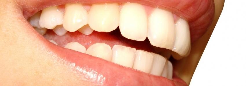 Имплантация зубов – избавление от съемных протезов