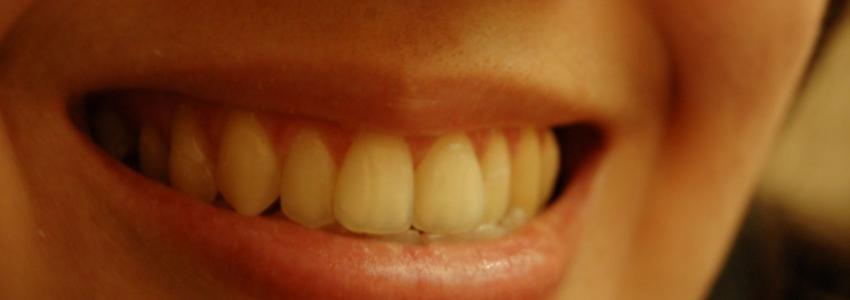 Способы и свойства отбеливания зубов