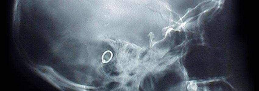 Лечение мигрени в клинике доктора Бобыря методом дефанотерапии