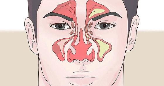 Как заложенность носа в домашних условиях 10